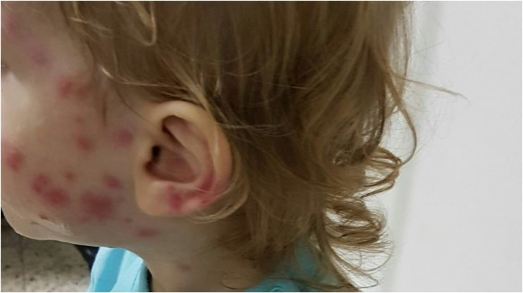 ילד שנעקץ בידי יתושים בהרצליה. צילום פרטי