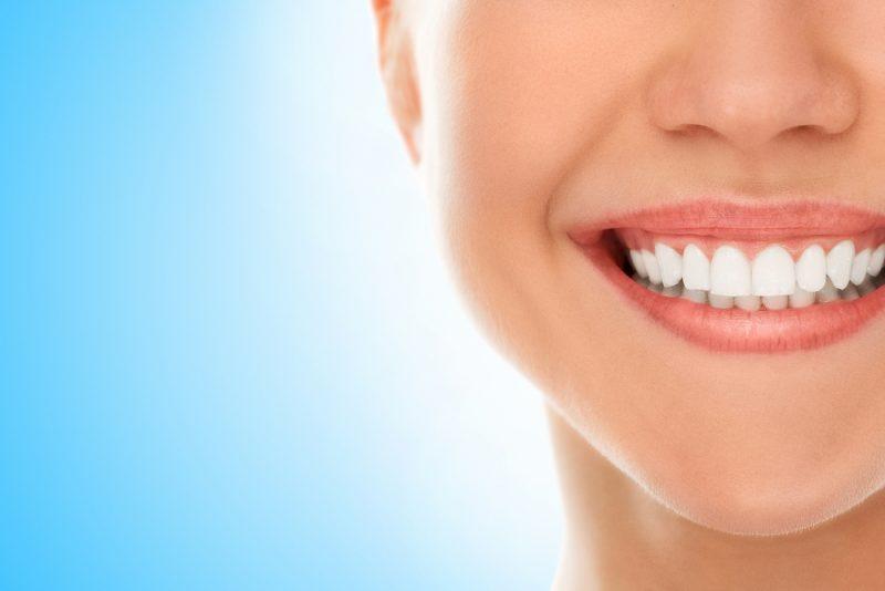 ציפוי שיניים בתל אביב. תמונת אילוסטרציה ממאגר Shutterstock- By Y Photo Studio