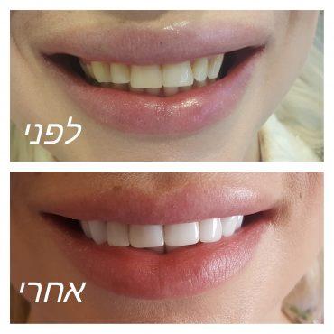 """ציפוי שיניים בתל אביב. קרדיט: ד""""ר מאיה בן צבי"""