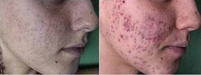 מטופלת לפני ואחרי הטיפול (צילום: איריס לוי)