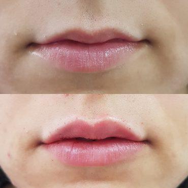 לפני ואחרי טיפול בוטוקס. צילום:דניאל הורוביץ