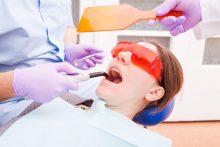 טיפול שיניים בלייזר בתל אביב: בלי כאבים, בלי הרדמה ועם הרבה רוגע. צילום: ממאגר Ingimage
