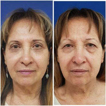 """לפני ואחרי ניתוח הרמת עפעפיים אצל ד""""ר ניר גל אור, צילום: סם יצחקוב"""